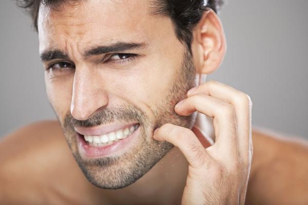¿Qué puedo hacer si tengo picor e irritación?