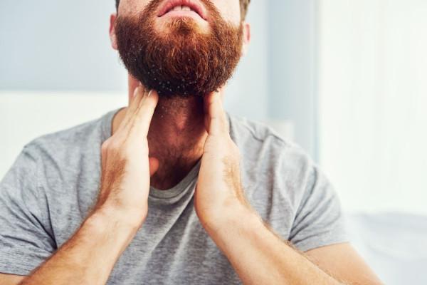 es normal tener caspa en la barba