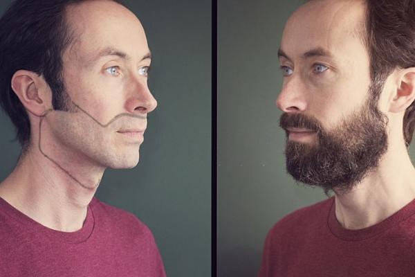 insertos de barba