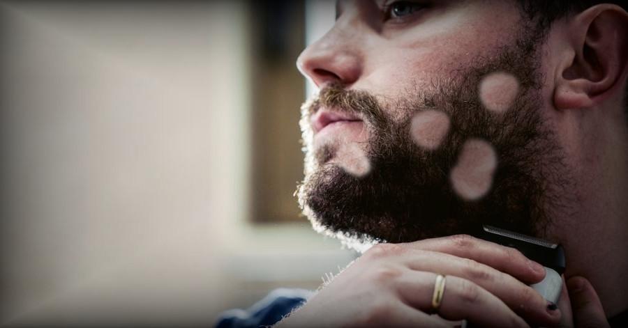 portada calva en la barba