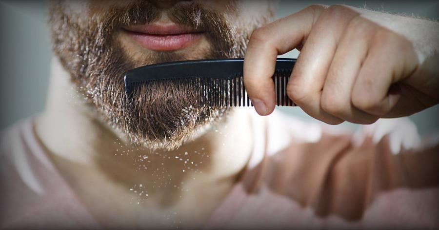 portada caspa en la barba